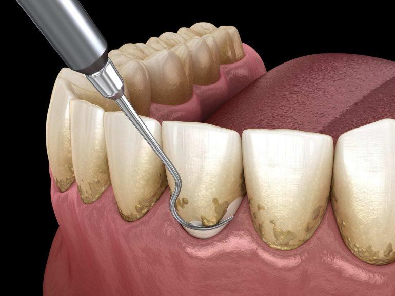 歯のクリーニング