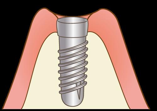 埋入手術(1回目の手術)