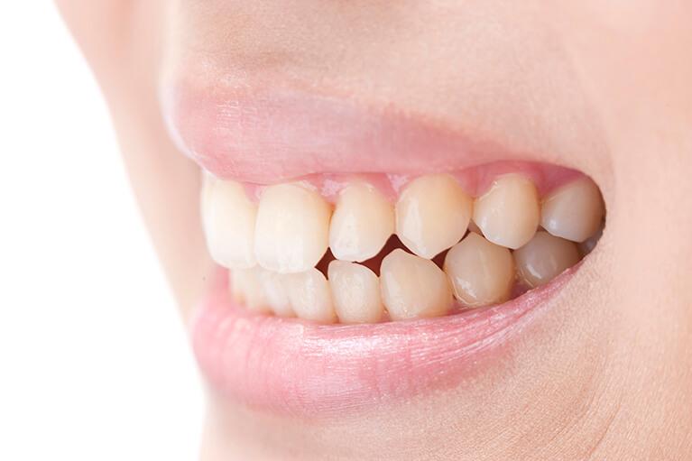 歯を失う原因第一位は歯周病