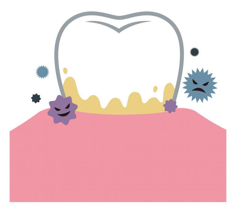 むし歯は「感染症」