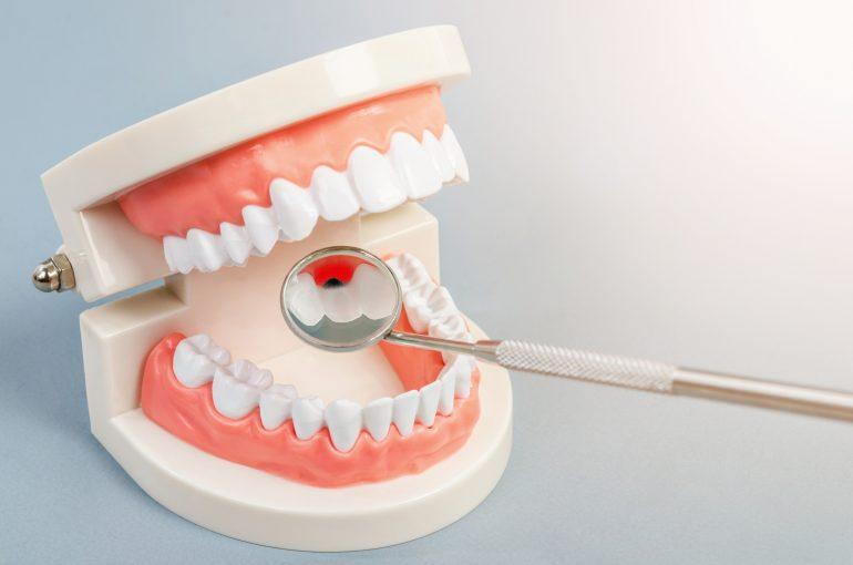 歯を残すための定期検診
